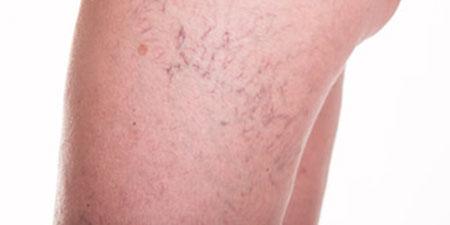 Beenvaten behandeling Huid Laser kliniek Utrecht