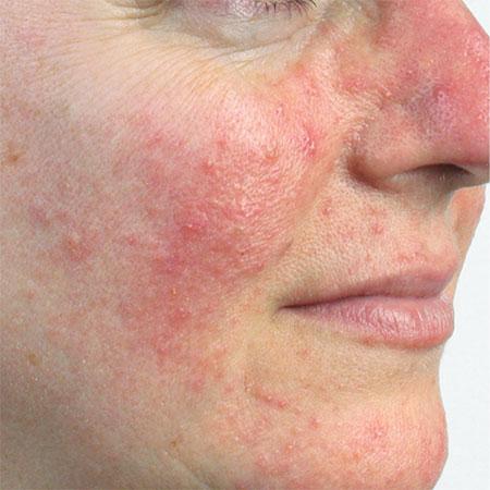 Huidaandoening Rosacea behandeling Huid Laser kliniek Utrecht