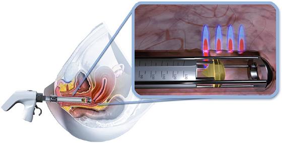 diva tight vagina laser - na vaginale klachten borst en baarmoederhalskanker - incontinentie - atrofie - verjonging schaamlippen - Huid Laser Utrecht